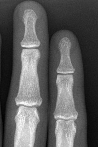 normale Finger